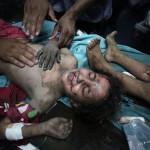 Elsősegélyben részesítenek egy palesztin kislányt, aki az izraeli rakéták becsapódásakor sebesült meg Gázában 2014. július 9-én. Az izraeli hadsereg július 8-án hadműveletet indított a Gázai övezet ellen a palesztin fegyveresek Izrael elleni rakétatámadásainak leállítására. A három napja tartó légi offenzívában eddig legkevesebb 57 palesztin vesztett életét, köztük  legalább hét nő és 14 gyerek.  (MTI/AP/Halil Hamra)