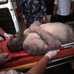 Hordágyon szállítanak el egy palesztin férfit, aki az izraeli rakéták becsapódásakor sebesült meg Gázában 2014. július 9-én. Az izraeli hadsereg július 8-án hadműveletet indított a Gázai övezet ellen a palesztin fegyveresek Izrael elleni rakétatámadásainak leállítására. A három napja tartó légi offenzívában eddig legkevesebb 57 palesztin vesztett életét, köztük  legalább hét nő és 14 gyerek.  (MTI/AP/Halil Hamra)
