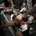 Izraeli rakéták becsapódásakor megsebesült palesztin gyerekeket részesítenek elsősegélyben Gázában 2014. július 9-én. Az izraeli hadsereg július 8-án hadműveletet indított a Gázai övezet ellen a palesztin fegyveresek Izrael elleni rakétatámadásainak leállítására. A három napja tartó légi offenzívában eddig legkevesebb 57 palesztin vesztett életét, köztük  legalább hét nő és 14 gyerek.  (MTI/AP/Halil Hamra)