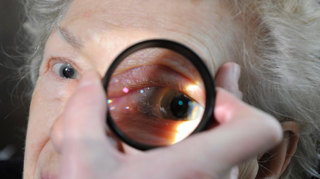 Rengetegen veszítik el a látásukat cukorbetegség miatt