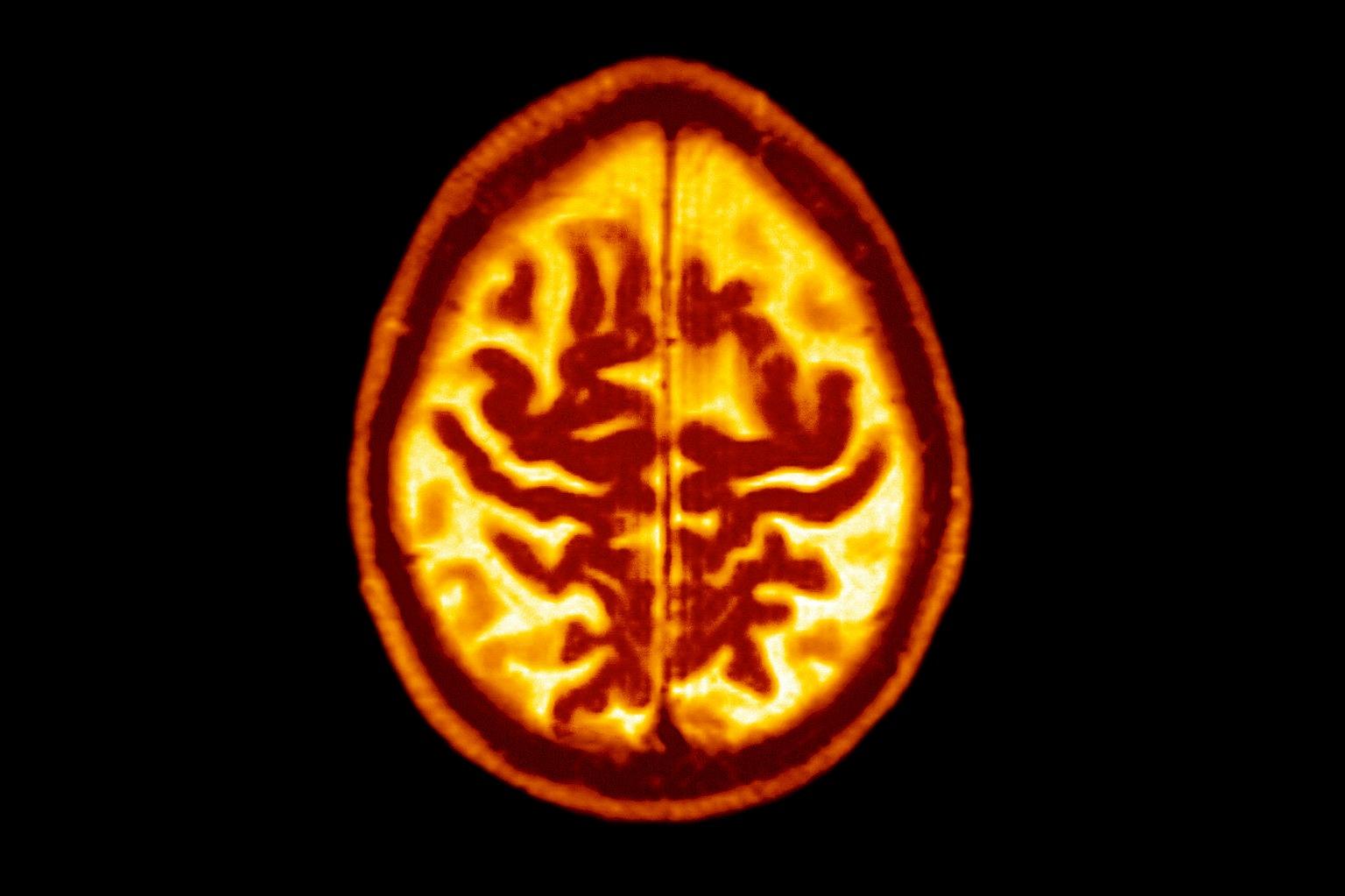 Alzheimer-kór (Fotó: Getty Images)