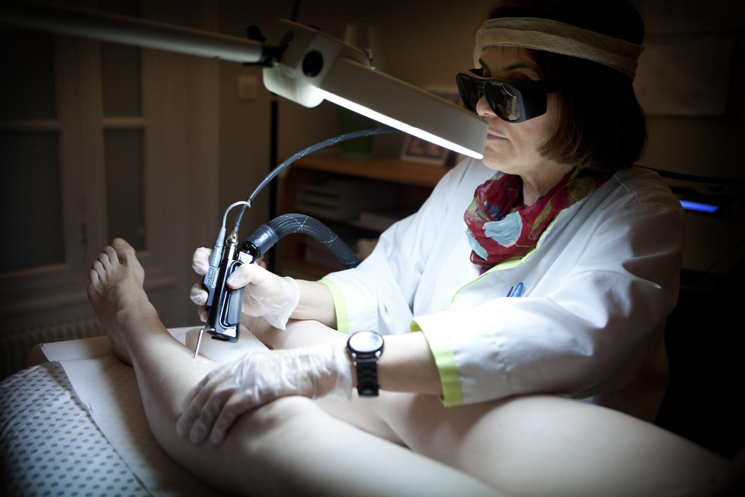 Seprűvénák lézeres kezelése. (Fotó: AFP)